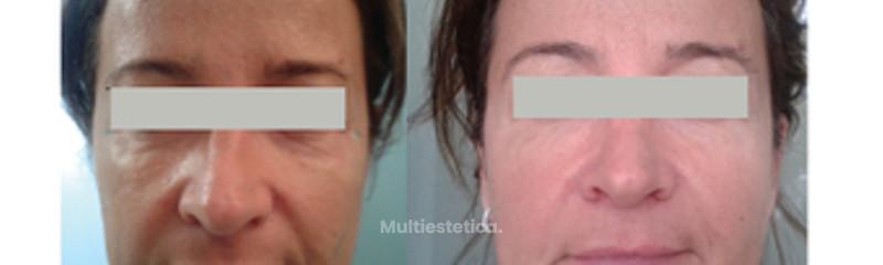 Mejora la apariencia de tu rostro
