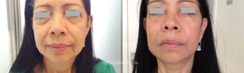 Reduce las arrugas de expresión