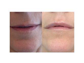Rejuvenecimiento facial-482015