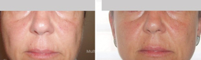 Rejuvenecimiento facial Dra. Villares