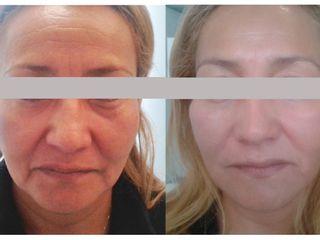 Atenuación de arrugas y líneas de expresión