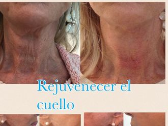 Rejuvenecimiento facial-561130