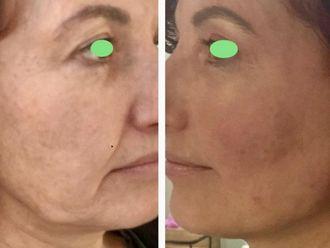 Rejuvenecimiento facial-631996