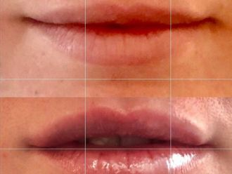 Aumento labios-631997