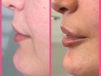 Aumento labios - 632538