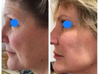 Rejuvenecimiento facial-634536