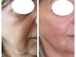 Recuperación de volúmenes y retensado facial