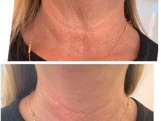 Eliminación arrugas-637153