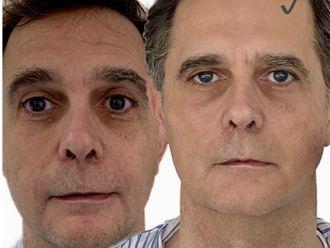 Rejuvenecimiento facial - 647271