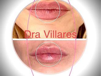Aumento labios-647308