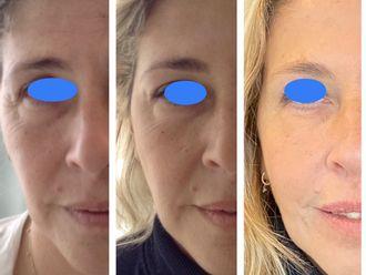 Rejuvenecimiento facial - 647315