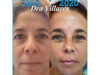 Bótox - Doctora Villares