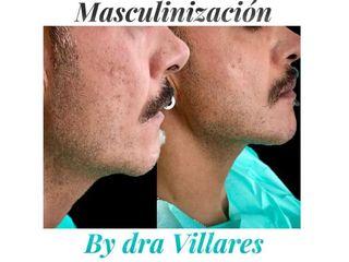 Rellenos faciales - Doctora Villares