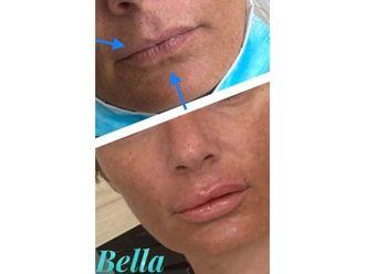 Aumento labios-701408