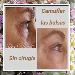 Eliminación de ojeras - Doctora Villares