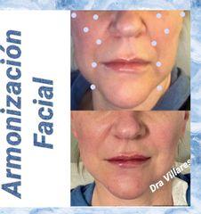Armonización facial - Doctora Villares
