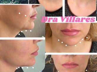 Rejuvenecimiento facial-786457