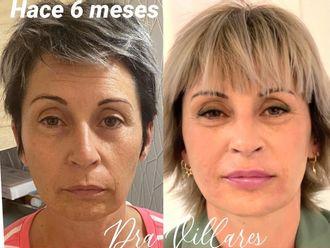 Rejuvenecimiento facial-786462