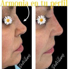 Rinomodelación - Doctora Villares