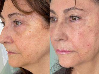 Rejuvenecimiento facial-786473