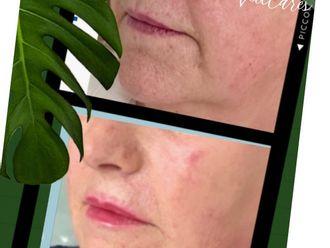 Rejuvenecimiento facial-786474
