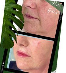 Rejuvenecimiento facial - Doctora Villares