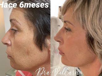 Rejuvenecimiento facial - 786477