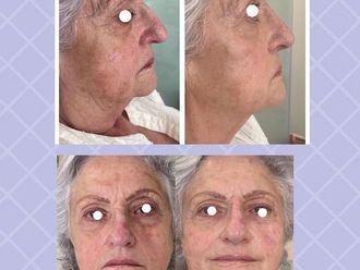 Rellenos faciales - 792395