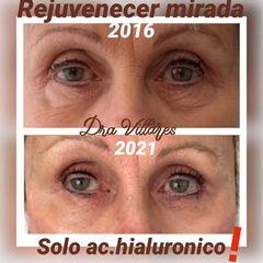 Ácido hialurónico - Doctora Villares
