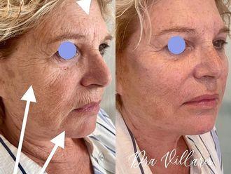 Rellenos faciales - 792400