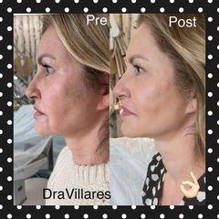 Peeling - Doctora Villares