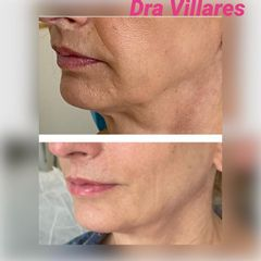 Hilos tensores - Doctora Villares