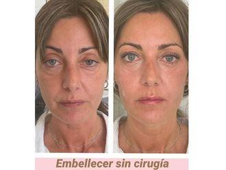 Rejuvenecimiento facial - 792404