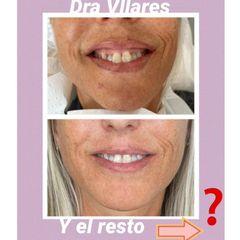 Aumento de labios - Doctora Villares