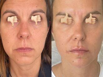 Rejuvenecimiento facial - 792410