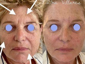 Rejuvenecimiento facial - 792411