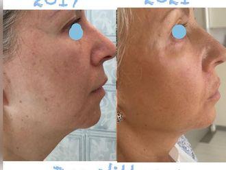 Rellenos faciales - 797887