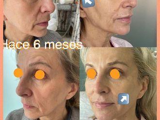 Rellenos faciales - 797894