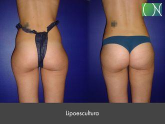 Lipoescultura - 631124