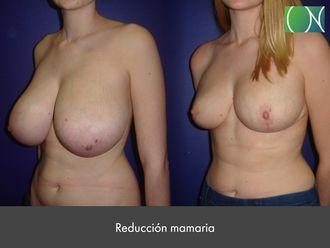 Reducción senos - 631128