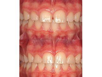 Ortodoncia invisible - 496788