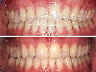 Ortodoncia invisible - 496789