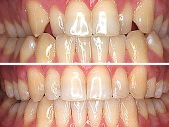 Ortodoncia invisible - 496790