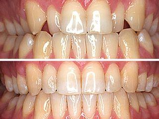Ortodoncia Invisalign (invisible)