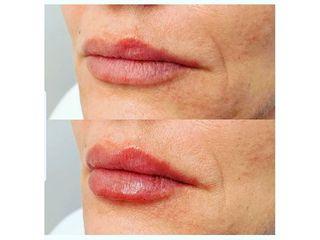 Aumento de labios - CominoEstetics