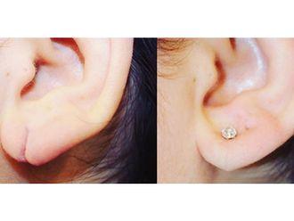 Cirugía reconstructiva - 663775