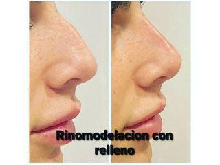 Rinomodelación - CominoEstetics