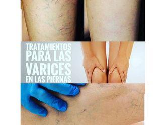 Tratamiento varices - 663791