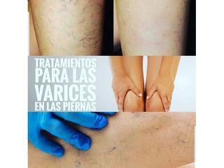 Tratamiento varices - CominoEstetics