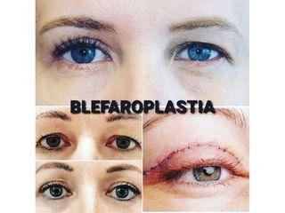 Blefaroplastia - CominoEstetics